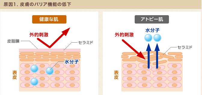 原因1.皮膚のバリア機能の低下