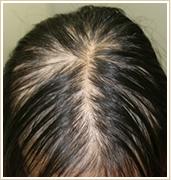 びまん型円形脱毛症